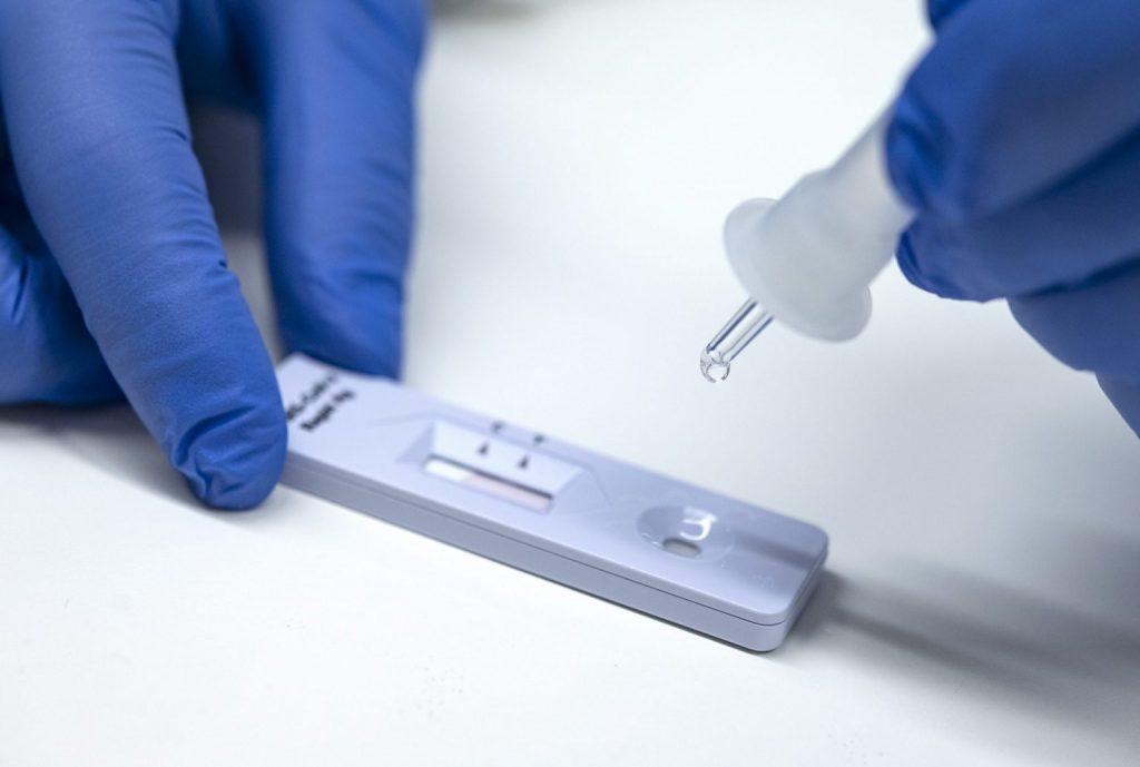 Δήμος Θηβαίων: Διεξαγωγή rapid tests στην κοινότητα Καπαρελλίου